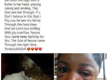 """God Of Miracles"" - See Nigerian Lady Who Survived 5 Days With A Bullet In Her Head (Photos)"