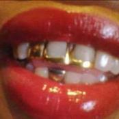 Check out this 3 disadvantages of having full Gold teeth in your mouth