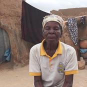 84-Year-Old Woman Living With Obstetric Fistula.