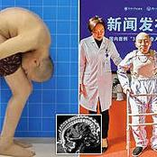 Meet Chinese Man Whose Body Was Folded For Many Years