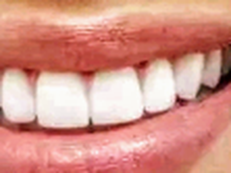 5 Easy Ways To Whiten Your Teeth Without Chemical Process