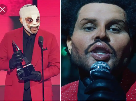 See the fishy trend concerning The Weeknd's new face