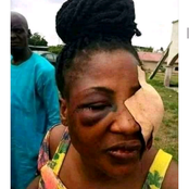 Just because I slapped his mother, my husband did these to me - Lady cries out