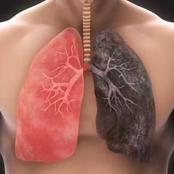 Once You Notice These Signs In Your Body, Pay Attention To Your Lungs