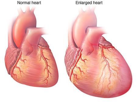 You Are Gradually Damaging Your Heart When You Are Doing These 3 Things