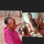 Remember the children who were maltreated by a ritualist, see their recent photos in the hospital