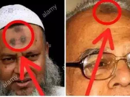 Check The Real Meaning Of The Dark Spot On A Muslim's Forehead