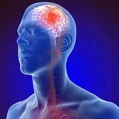 If You are Upto 45 and Above, Stop Doing These 5 Things to Prevent Sudden Stroke
