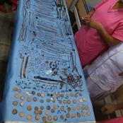 Throwback To When Doctors Removed Jewelleries Worth 53,000 Dollars In A Woman Stomach