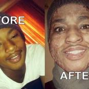 His schoolmate set him on fire because he won a scholarship as a black boy; see how he looks now
