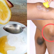 Try These Natural And Easy Remedies At Home To Lighten Your Dark Knees And Underarms