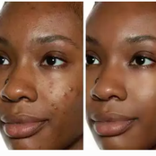 3 Simple Habits Thant Can Make Your Face Free From Pimples