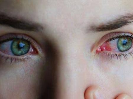 Itchy Eyes Causes: 8 Reasons Your Eyes Itchy