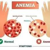 What You Should Know About Anaemia