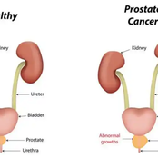 5 Early Warning Signs Of Prostrate Cancer