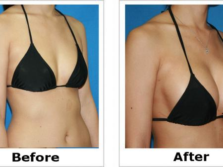 Opinion: Women, Here's How You Can Have Firmer And Reshaped Breasts Without Surgery