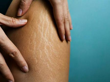 Effective and powerful remedies you can use for stretch marks.