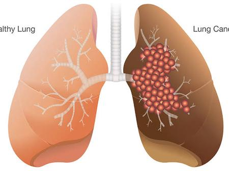 Lung Cancer Kills: If You Notice These Following Symptoms, Go And Do Check-Up.