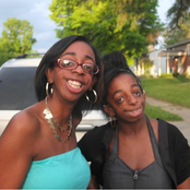 Meet Facially Impaired Sisters Who Proudly Said They Were Created in God's Image (See Pictures)