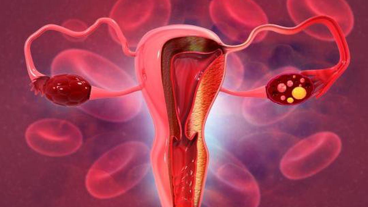 """Journée mondiale du cancer de l'ovaire : """"des progrès significatifs dans les traitements"""""""