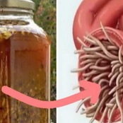 The Most Powerful Natural Antibiotic That Kills Any Infection in the Body
