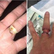 A married woman who wore a ring for 20 yrs see what she Caught after removing the ring on her finger