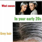 What causes gray hair in your early 20s and how to prevent it