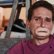 Remember The 37- Year Old Alex Lewis Who Developed Rare Health Condition, See His Current Life