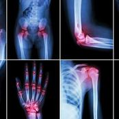 Normalize Joint pain by rejuvenating the blood flow and veins in 90days without reversal.