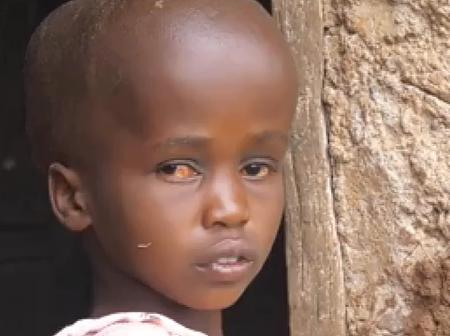 They Call Her Headmistress Because Of The Head Size; Mother Cries For Her Daughter