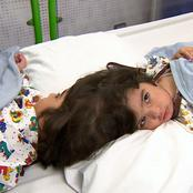 [Pictures] Miracle or Medicine?! Twins Born Sharing Head Separated Successfully