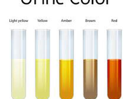 Different Colours Of Urine.- See What Your Urine Colour Says About Your Health, And How To Treat It.