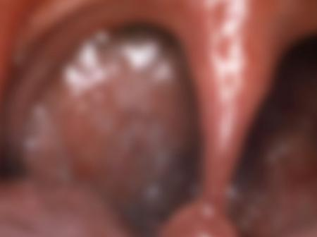 Check the Bad side effects of Licking & Blow Job
