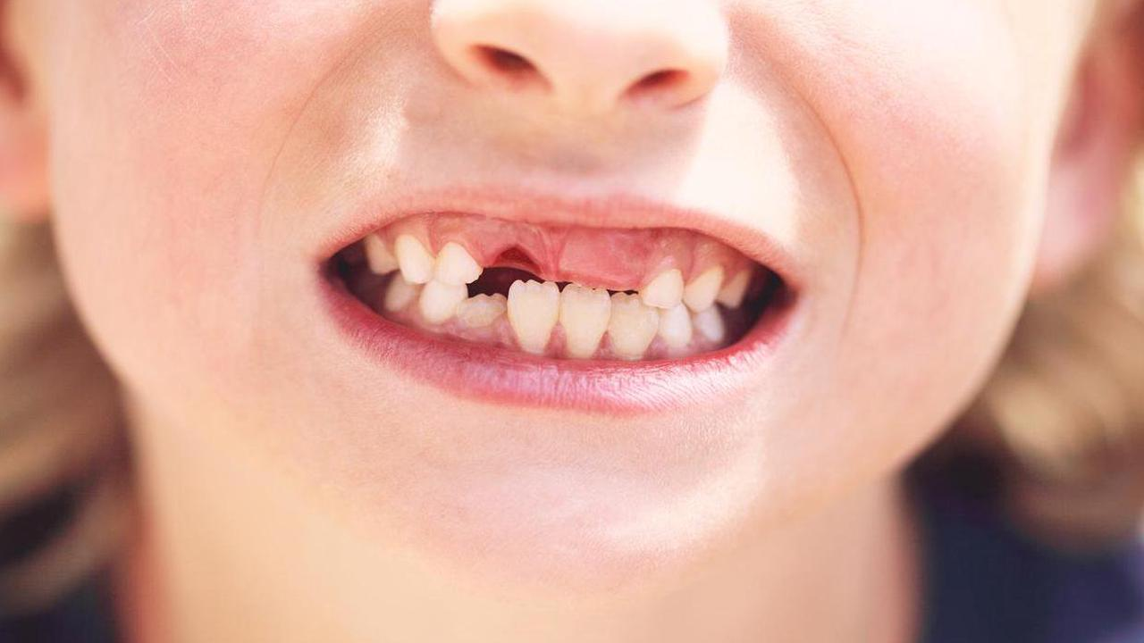 Warning children will lose teeth for life as public dentists redeployed to Covid vaccine duties