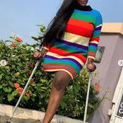Remember The Young Actress Who Lost Her Left Leg, See What She Has Achieved Despite Her Condition