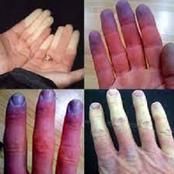 ظاهرة رينود.. تعرف على أسباب ومدى خطورة إصابة أطرافك بتنميل أو تغير لونها للأزرق أو للأبيض