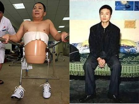 He Was Cut Into 2 In An Accident And Almost Died, See How this Man Is Now