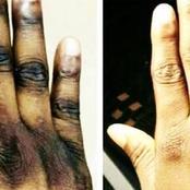 Côte d'Ivoire : pourquoi les femmes préfèrent se décaper la peau ?