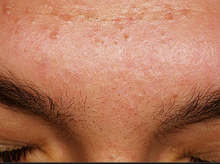 How I Permanently Cured My Acne (Pimples) And Until Now I Have Never Experienced It