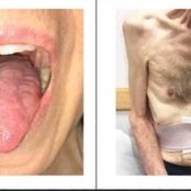 Difficulties with chewing and swallowing make eating very difficult and increase the risk of choking