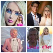 They Are Not Barbie Doll, They Are Human Being That Underwent Surgeries To Look Like Dolls
