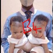 See What A Nigerian Doctor Did To This Coinjoined twin That Got People's Reactions