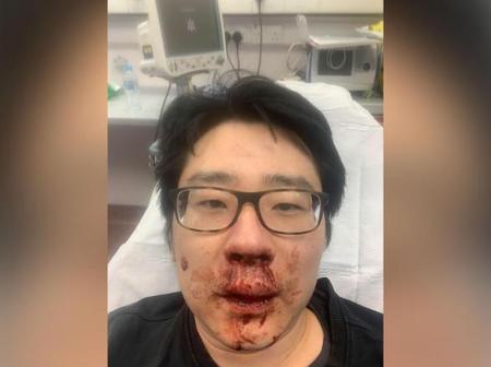 Atlanta spa attacks shine a light on anti-Asian hate crimes around the world
