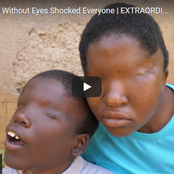 Meet Luis And Her Brother Valence Who Were Born Without Eyes | Luis Tells Their Sad Story.