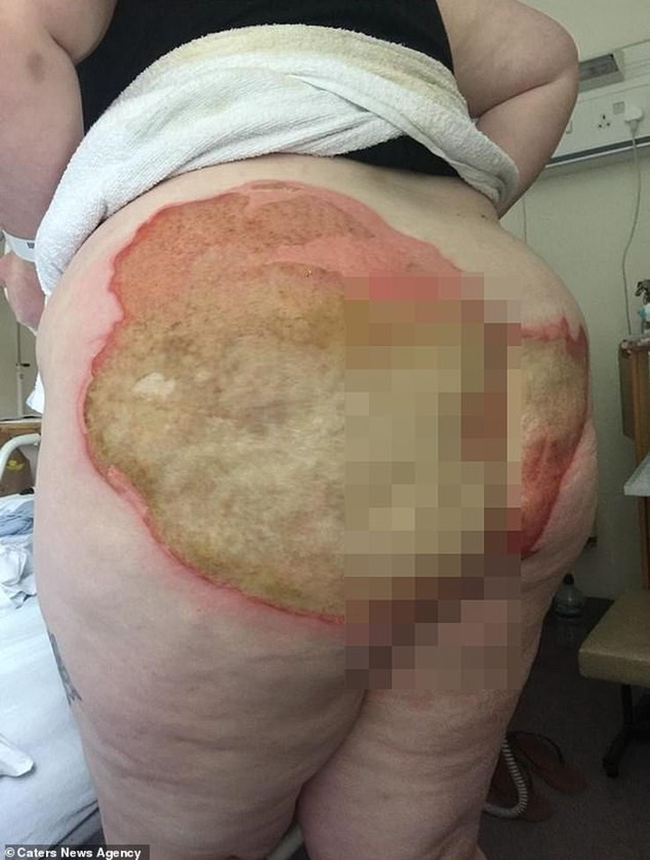 Woman suffers horrific burns on her buttocks after falling on a radiator pipe following an epileptic seizure (Photos)