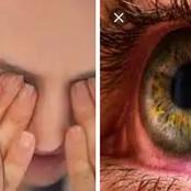 Your Eyes Is Important. If You Notice Any Of These 10 Signs And Symptoms, Please Check Your Eyes.