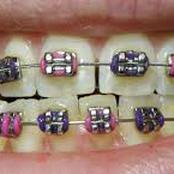 Cost of Dental Braces in Kenya