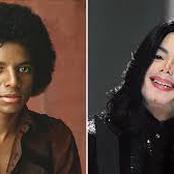Here Is The Reason why Michael Jackson change his skin colour