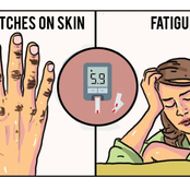 Identify These 9 Symptoms Of Diabetes To Get Timely Diagnosis