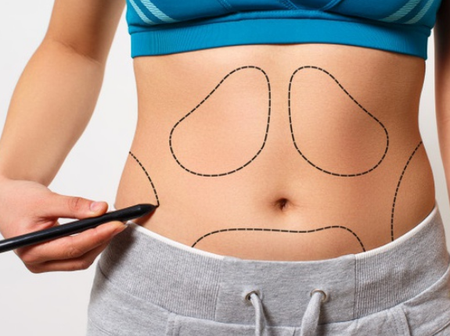 Things You Need To Know About Weight Loss Surgery